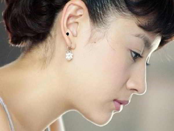 Nốt ruồi ở vành tai nói lên điều gì trong vận mệnh một người?